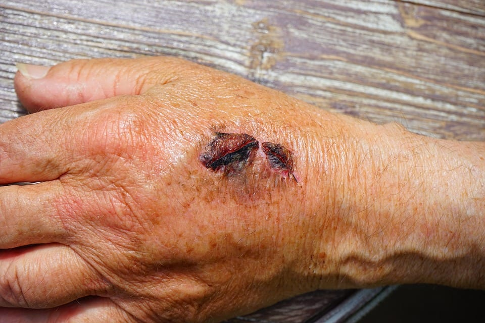 Most Common Injuries Treated At An Urgent Care   Urgent Care Omaha